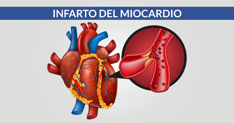 infarto miocardio problematiche cardiologiche e cardiovascolari