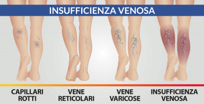Insufficienza venosa