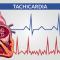 Tachicardia: quando può essere pericolosa?