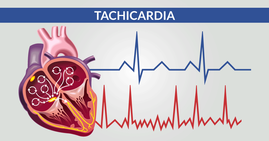 tachicardia problematiche cardiologiche e cardiovascolari