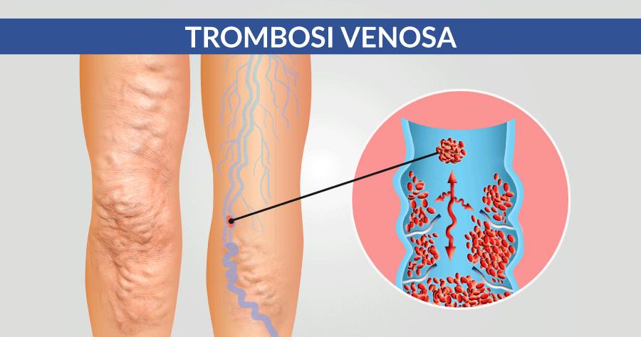trombosi venosa problematiche cardiologiche e cardiovascolari