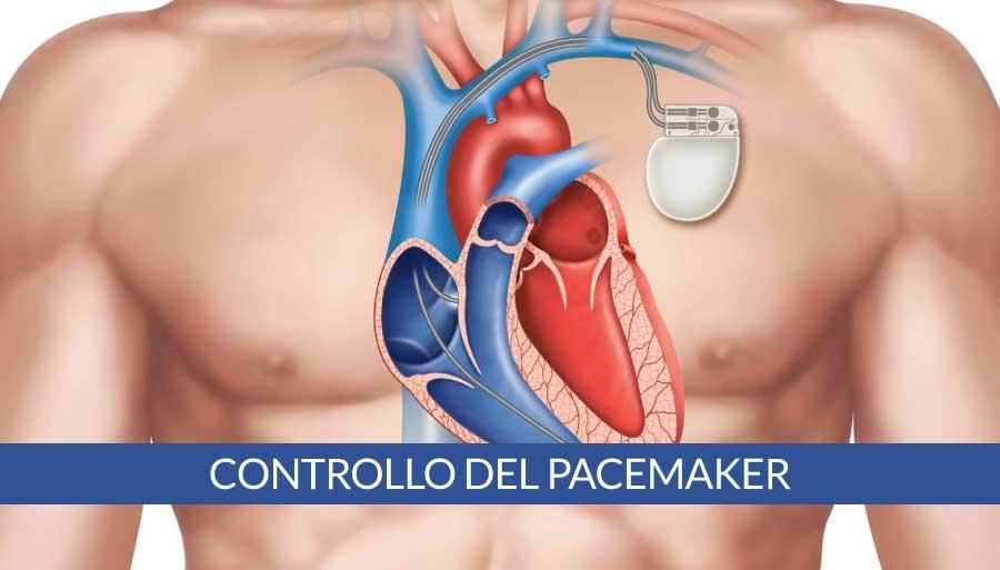 controllo-del-pacemaker-a-napoli-cardiocenter
