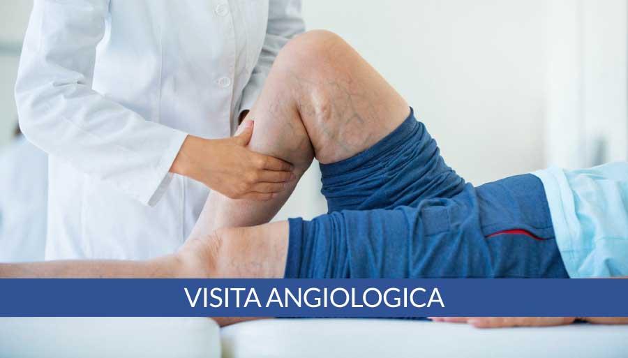 visita-angiologica-a-napoli-cardiocenter