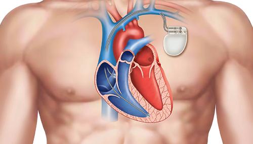 controllo-del-pacemaker-cardiocenter-a-napoli