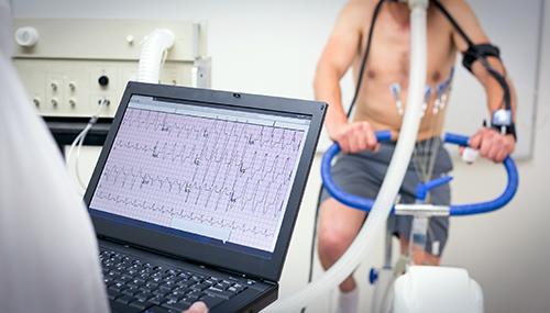elettrocardiogramma-da-sforzo cardiocenter-napoli